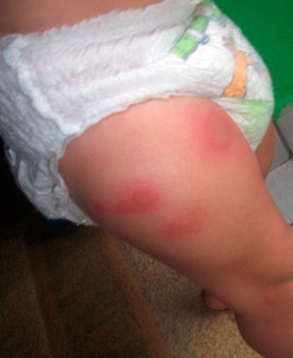 аллергия на укусы клопов симптомы лечение