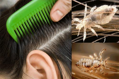 Как прекратить рост волос народные средства идеале