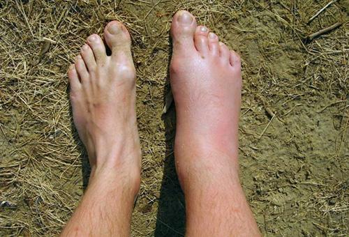 укус в ногу