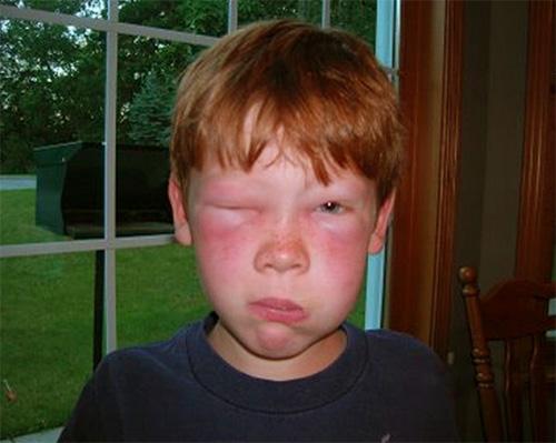 отек от укуса осы в глаза