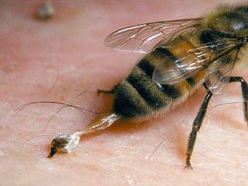Если в при укусе жало осталось в ранке, значит Вас укусила пчела