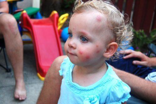 Больше всего страдают от укусов насекомых маленькие дети