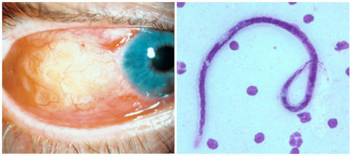 Так выглядит болезнь филяриатоз