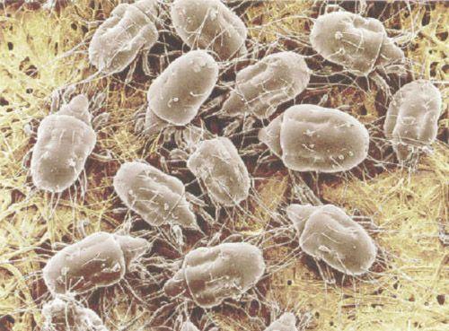 на фото: пылевые клещи под микроскопом