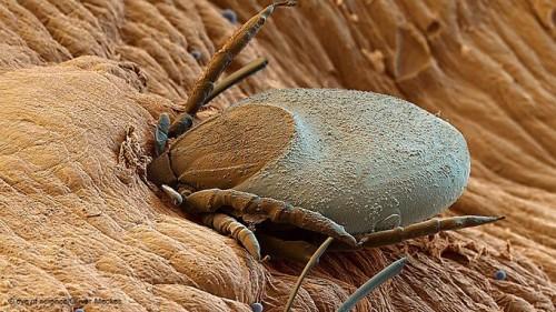 клещ сосущий кровь под микроскопом