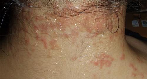насекомые могут вызвать аллергию