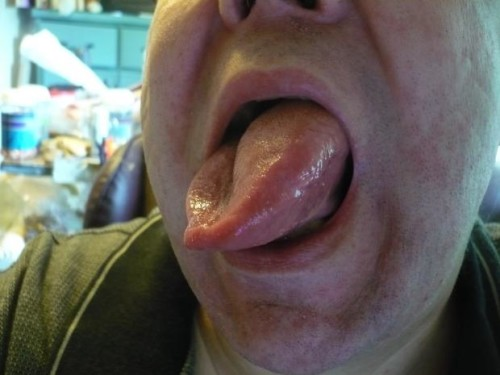 Укус насекомого в язык