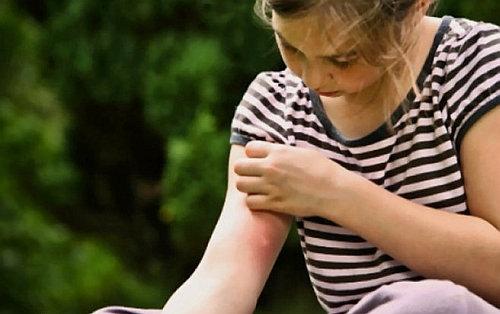 Соду даже можно использовать в качестве снятия зуда от укусов у детей