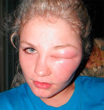 укус комара в глаз